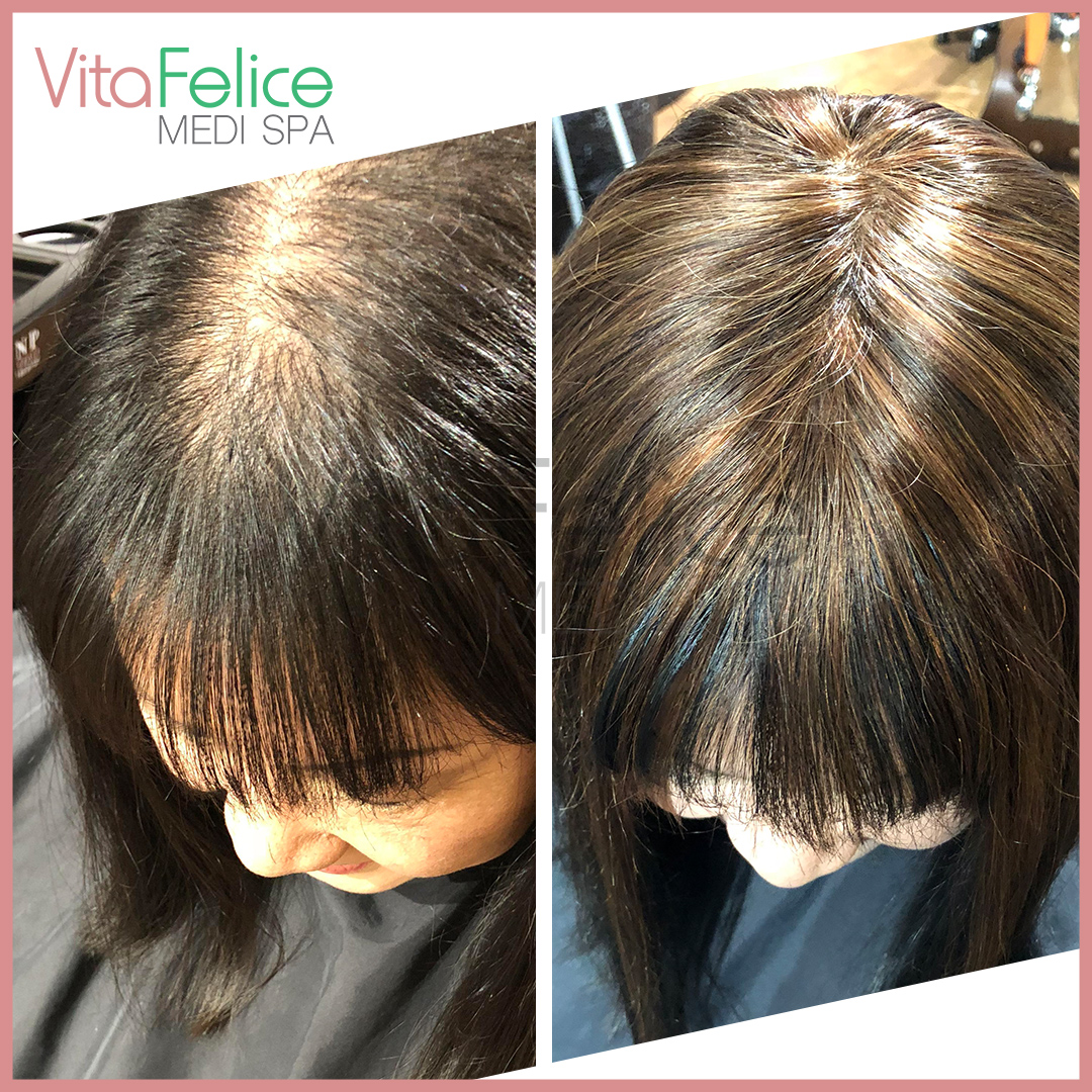 Women's hair loss before and after. New Westminster