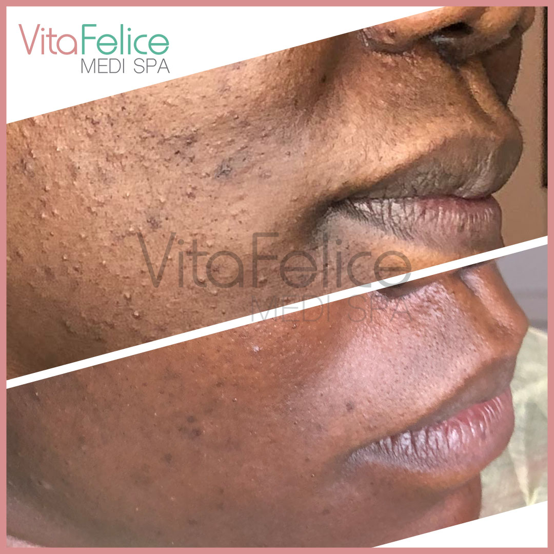 Acneic skin remarkably improved with treatments at Vita Felice New West