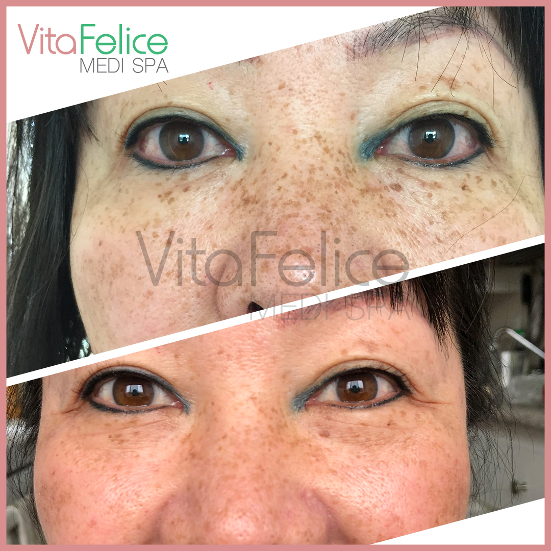 Freckles reduced with PCA retinol New West