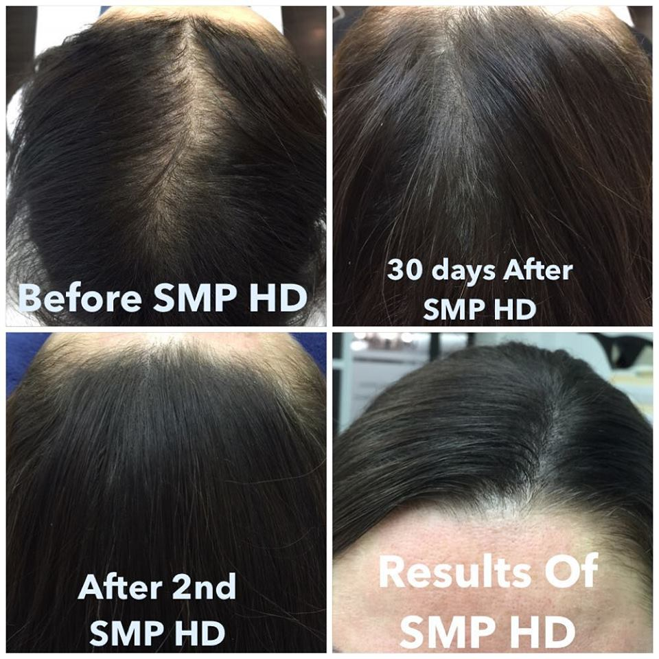 Woman hair loss. Before SMP and after SMP. Vancouver