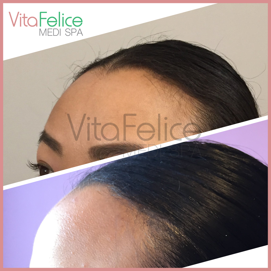 Woman hairline SMP before after. New West