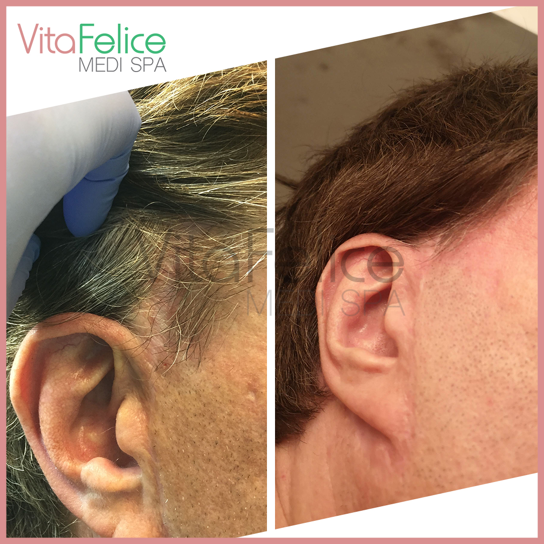 Face lift scar reduction with microneedling in New West