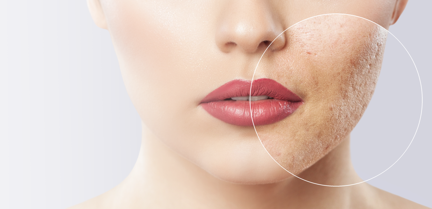 acne scar treatment in New Westminster