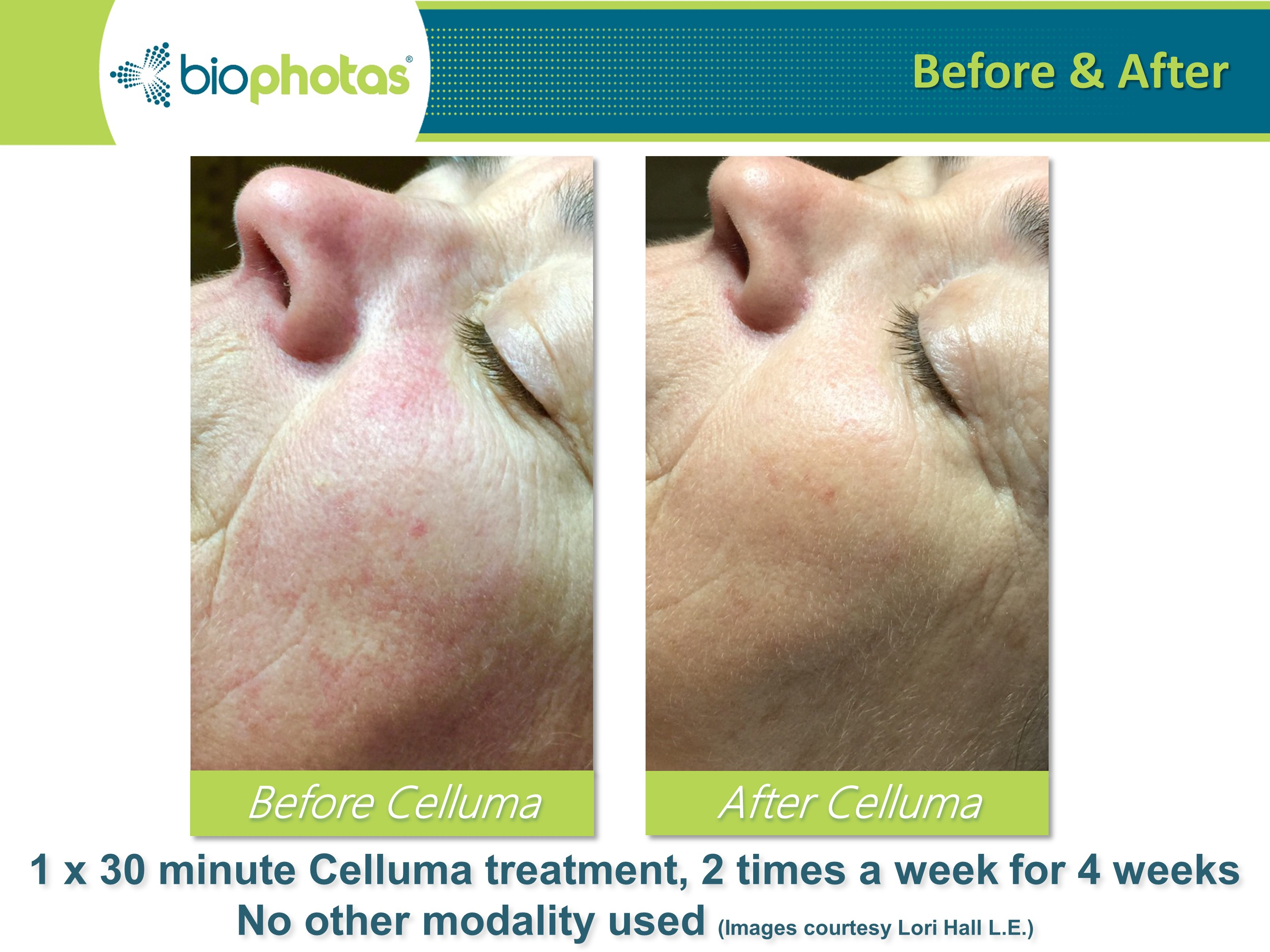 Celluma LED Light after 8 sessions