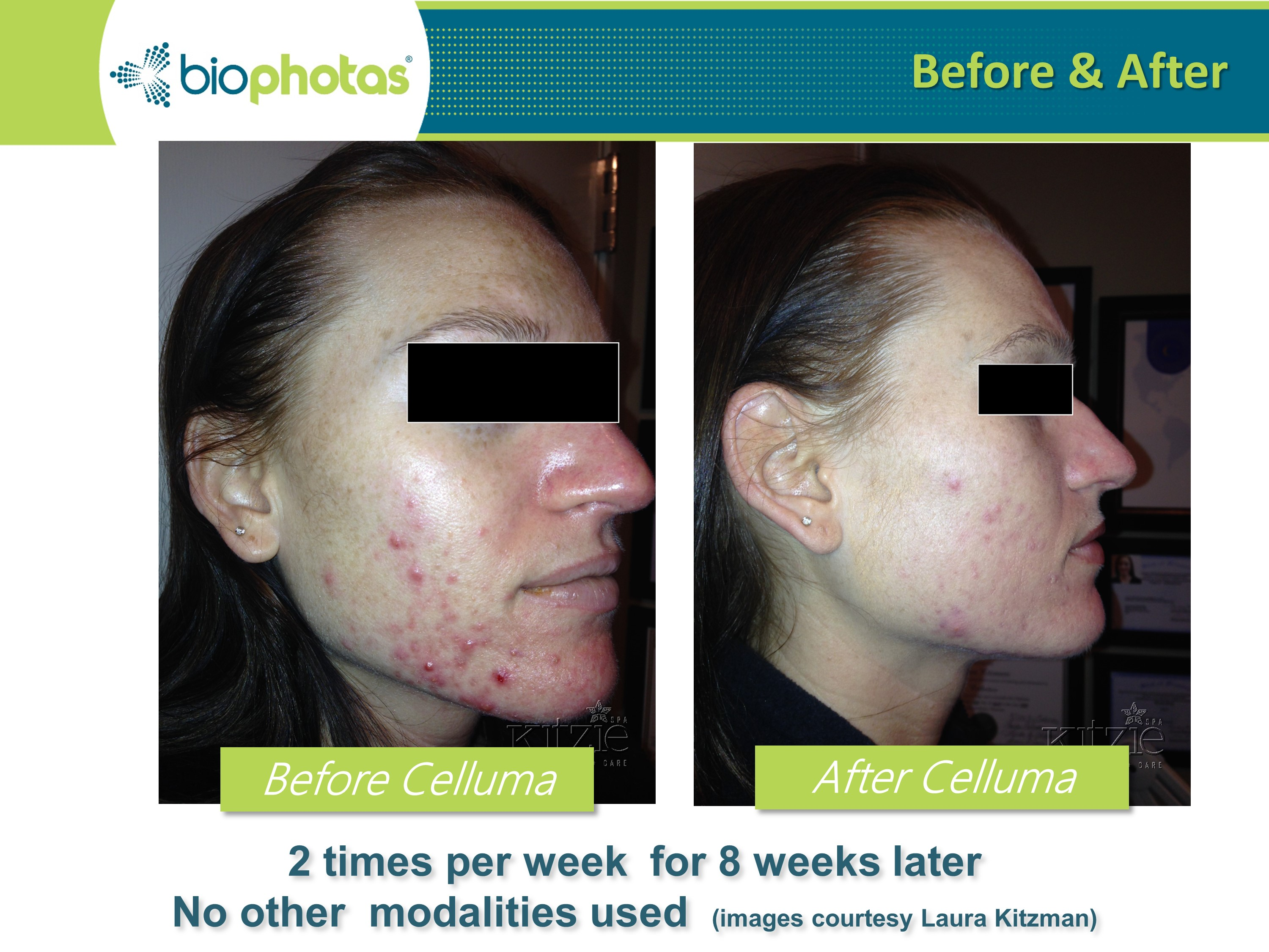 LED Therapy for acne