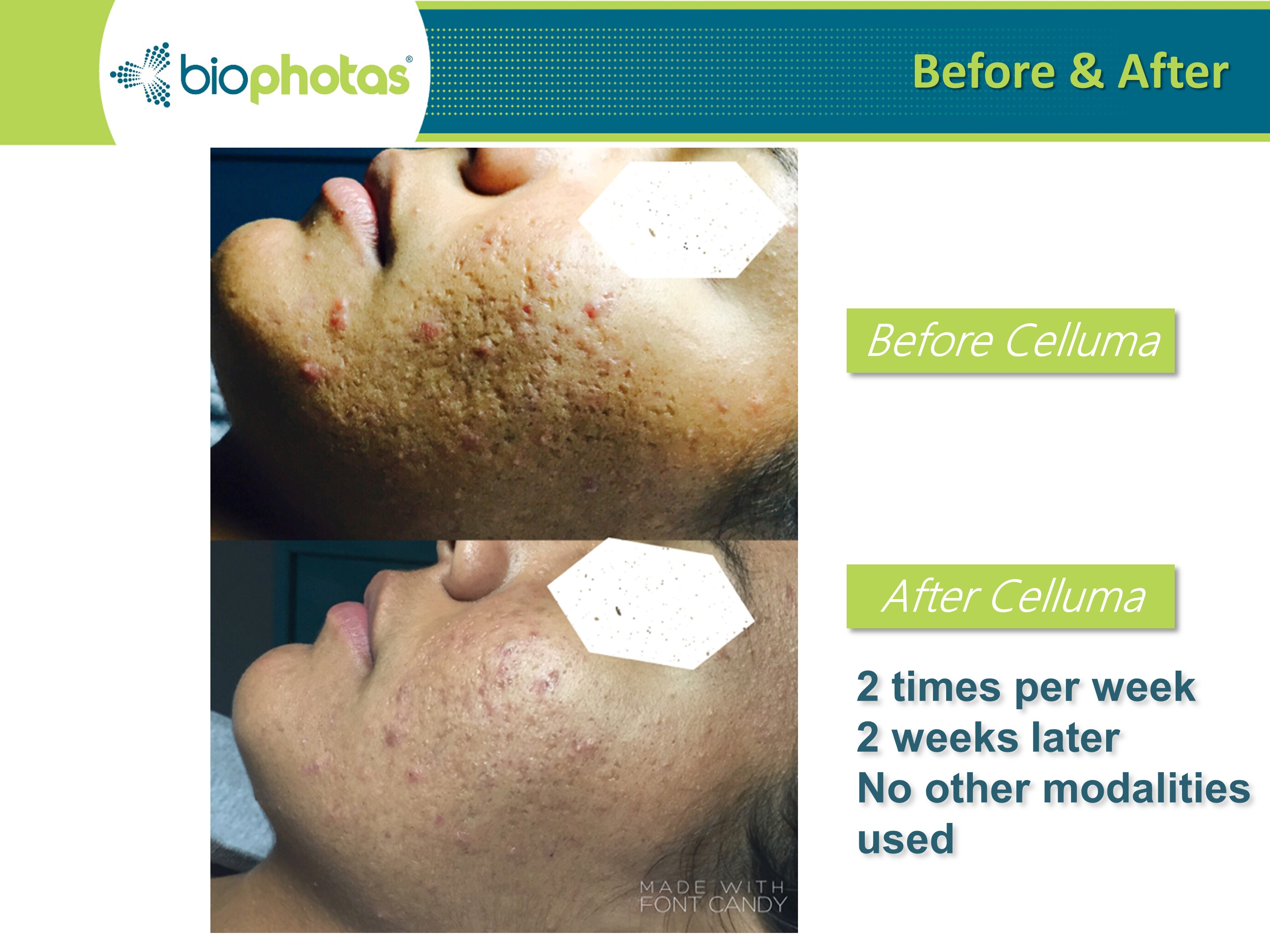 LED acne scars treatment