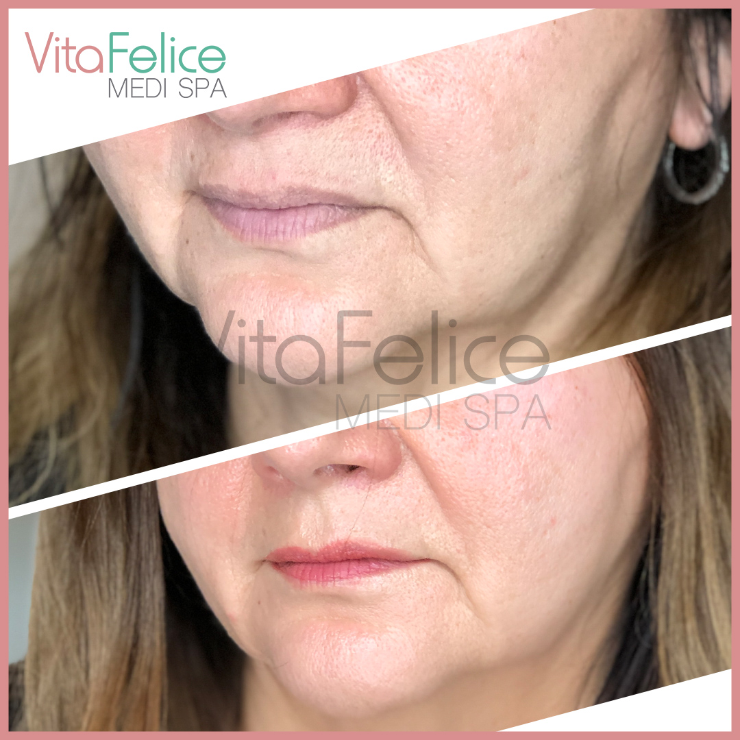 Microneedling LED in New Westminster