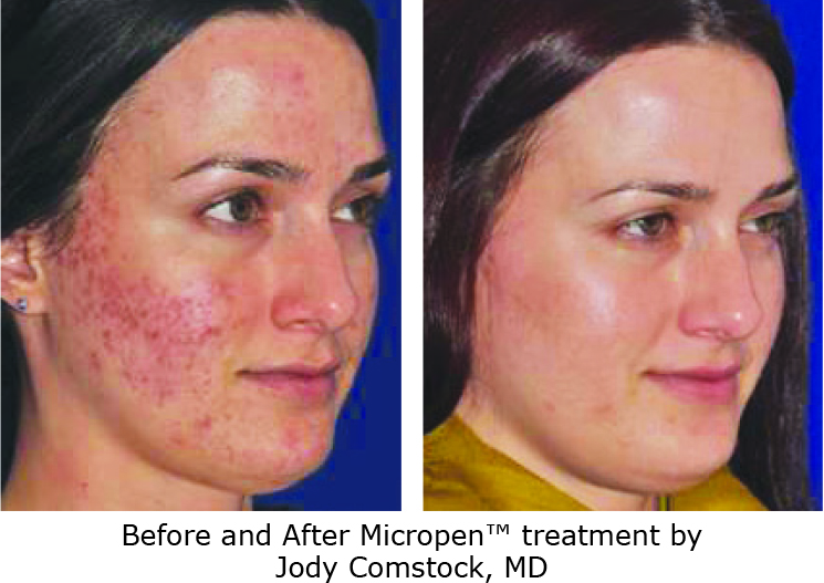 Microneedling-before-after-acne 2