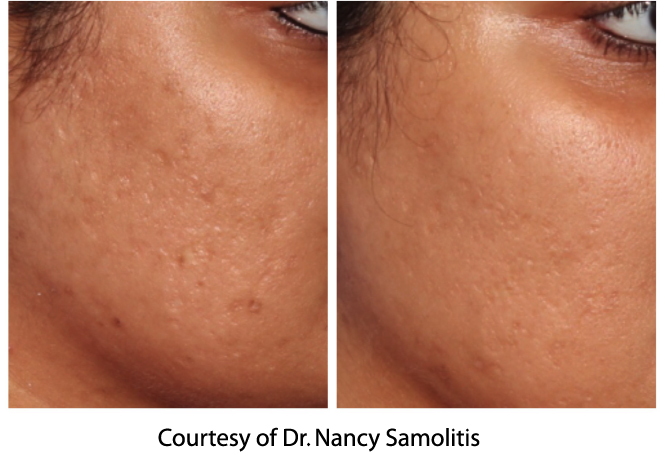 Microneedling-before-after-acne scars