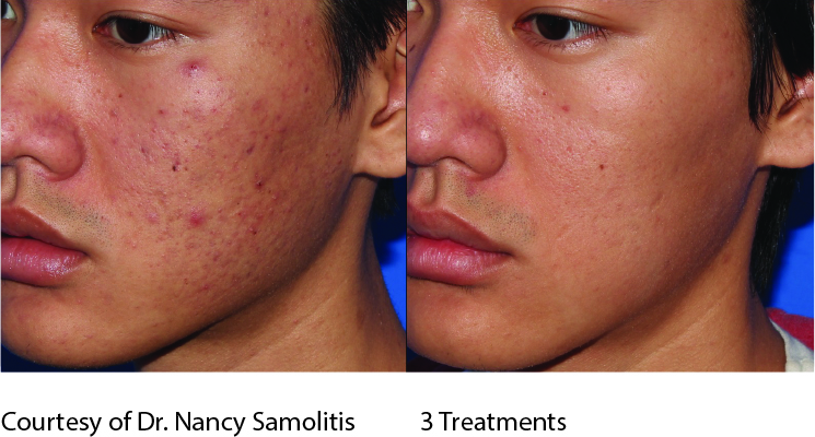Microneedling-before-after-acne