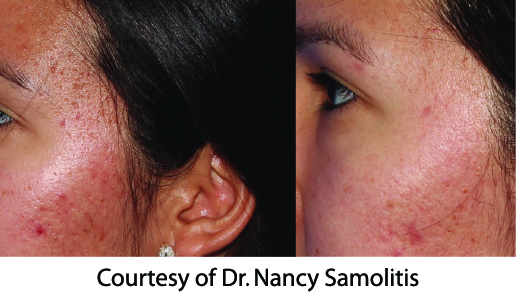 Microneedling-before-after-acne1