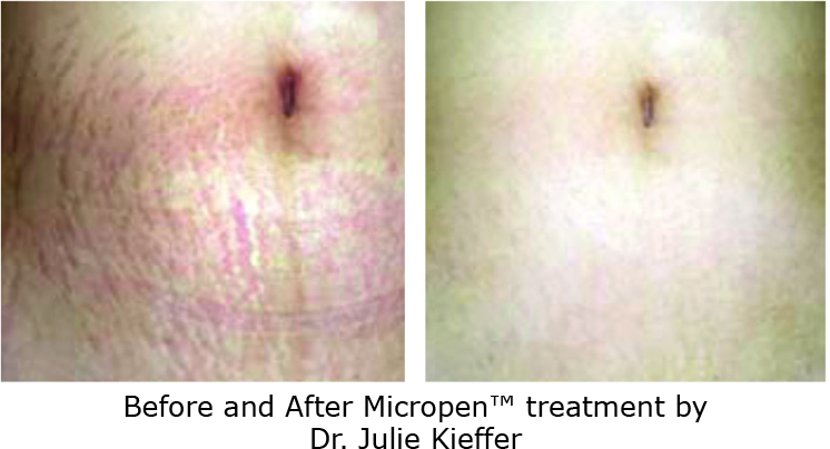 Microneedling-before-after-stretchmarks