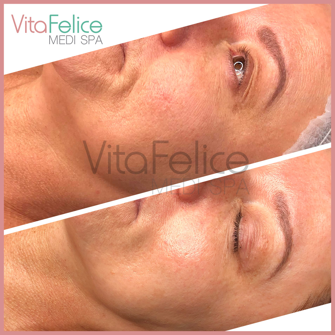 Stem cell facial before after