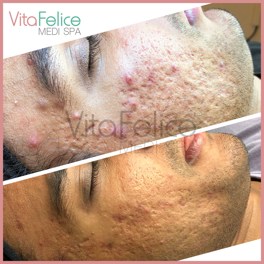 Acne treatment After 2 sessions of microneedling in New West