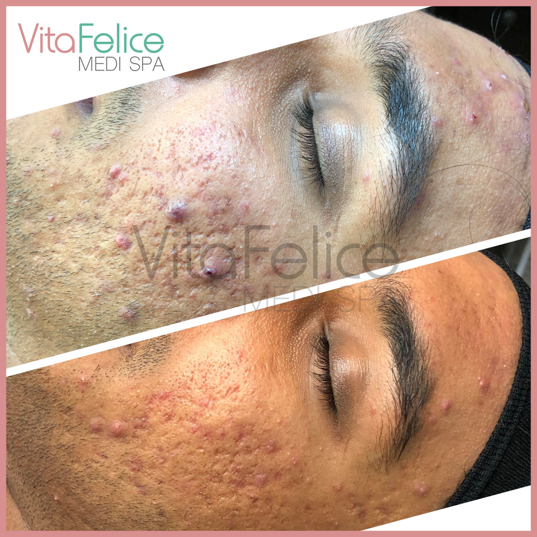 After 2 sessions of microneedling Acne scar treatment in New West