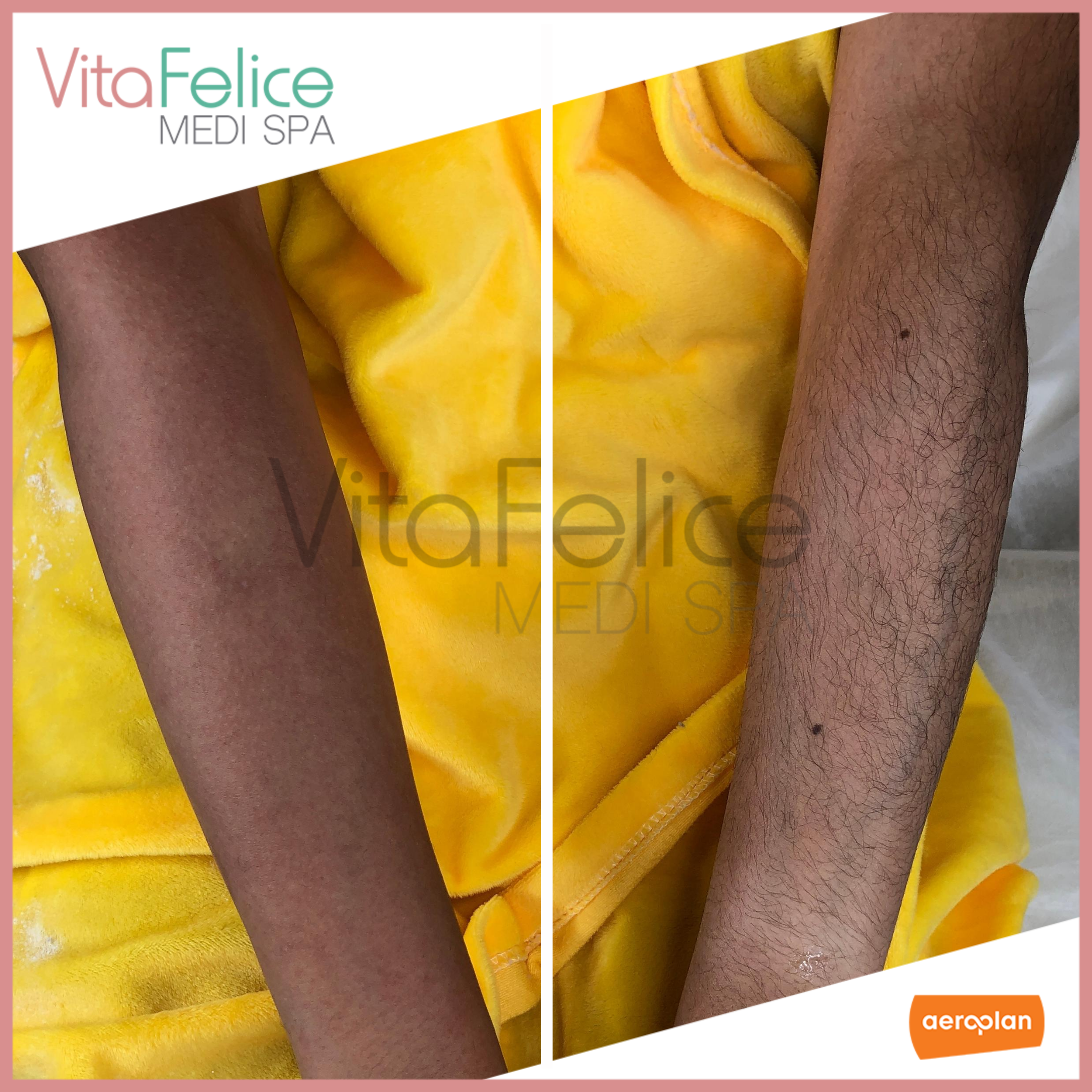 Sugaring Hair Removal at Vita Felice