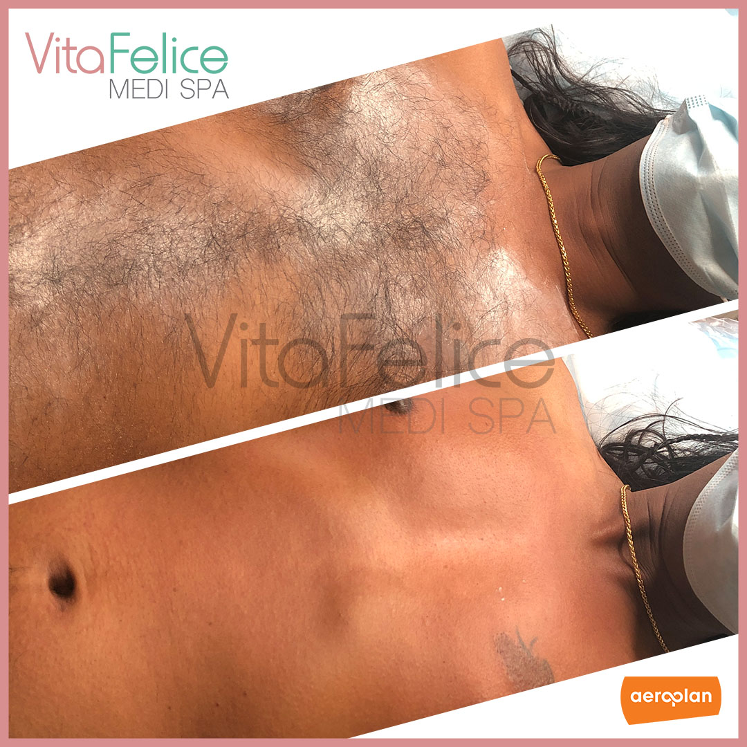 smooth chest after sugaring at Vita Felice New West