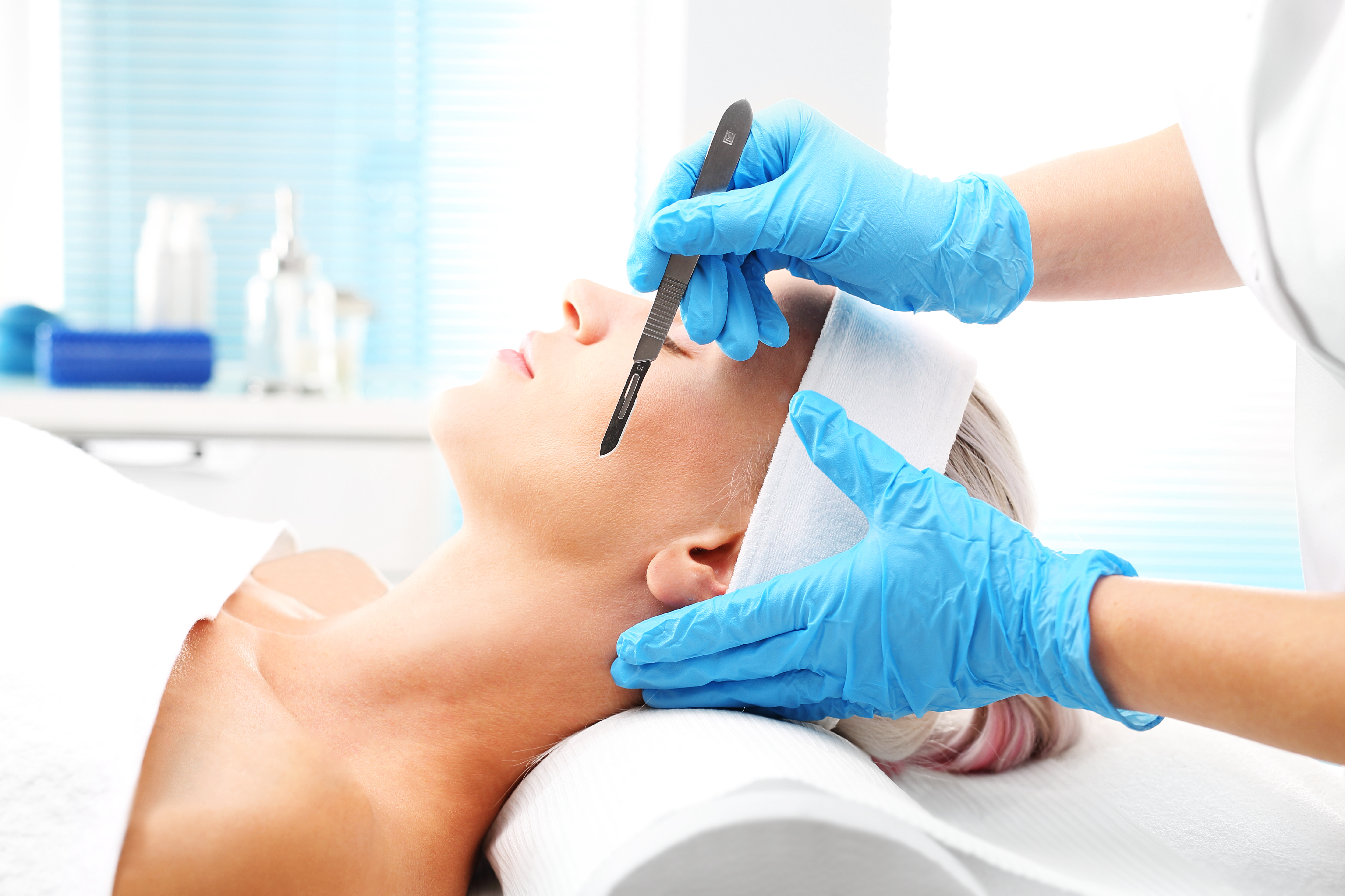 Dermaplaning exfoliation offered at Vita Felice in New Westminster