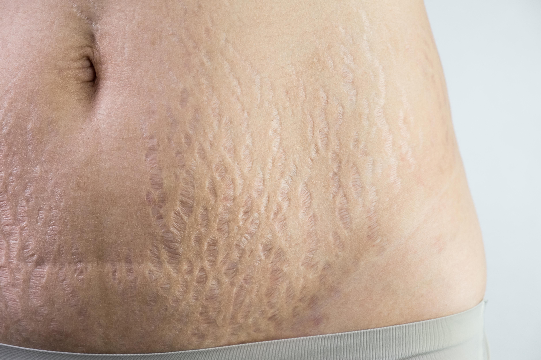 Vita Felice Medi Spa Scar Removal Treatments