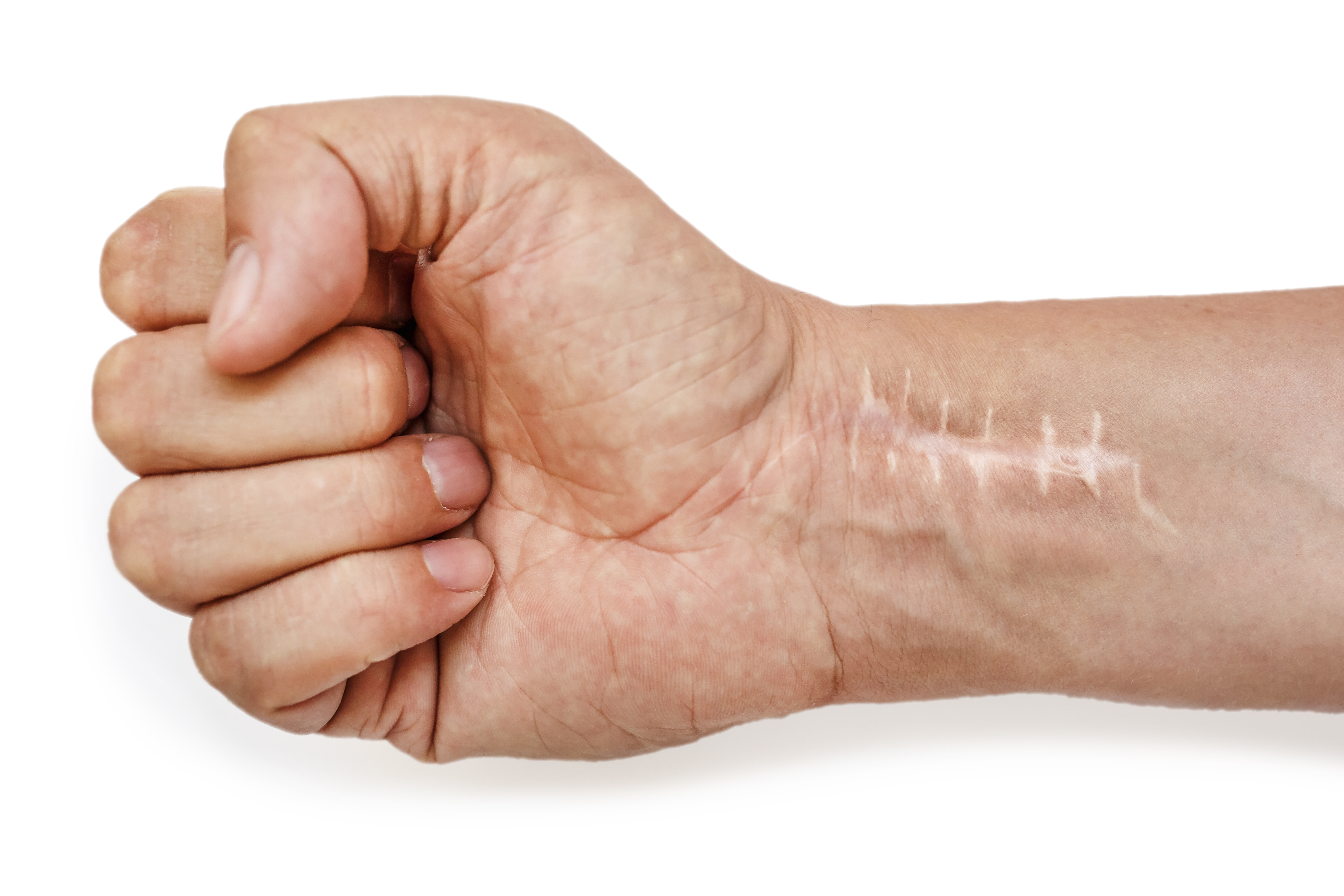 Surgical scar removal Vita Felice New Westminster