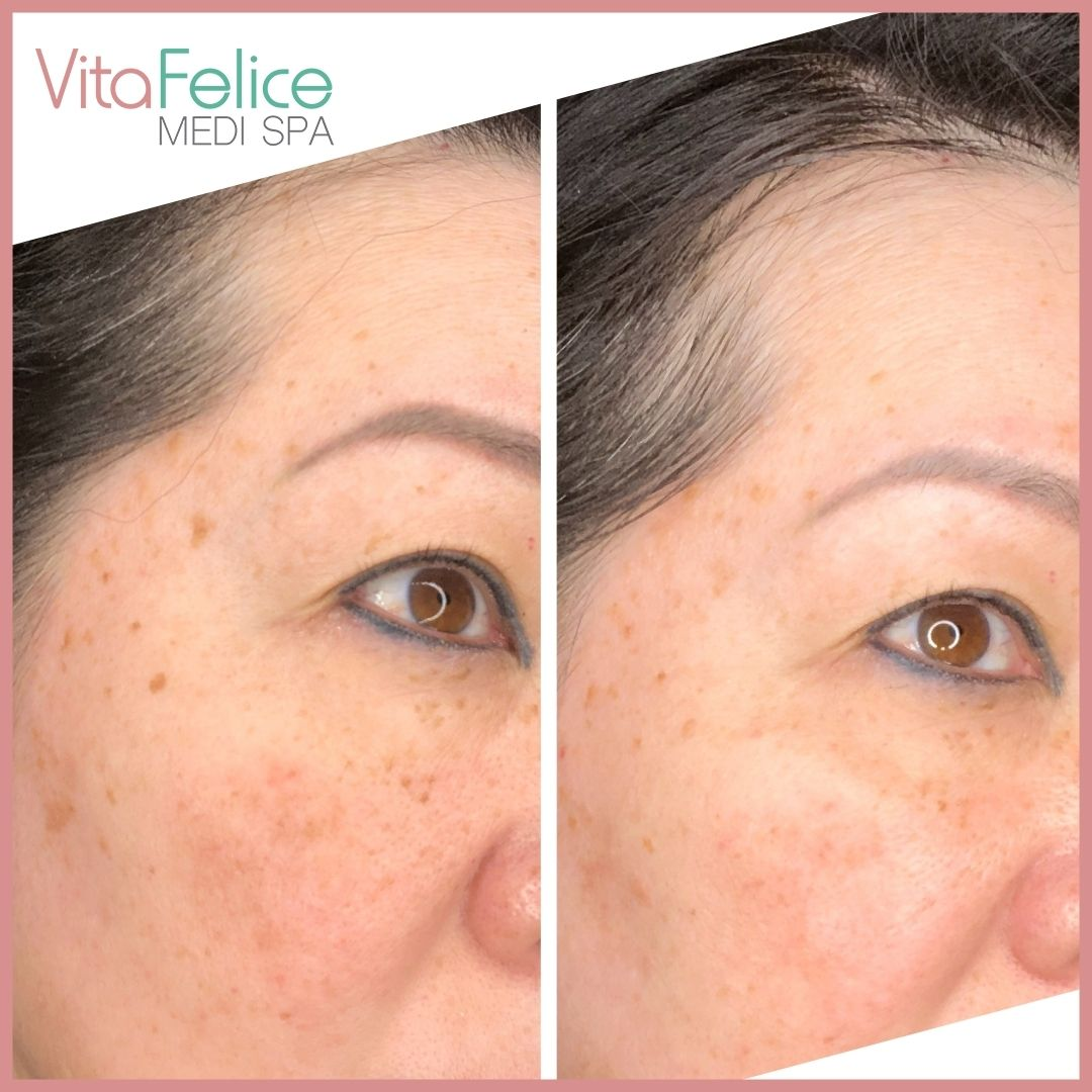 Age spots removal New Westminster