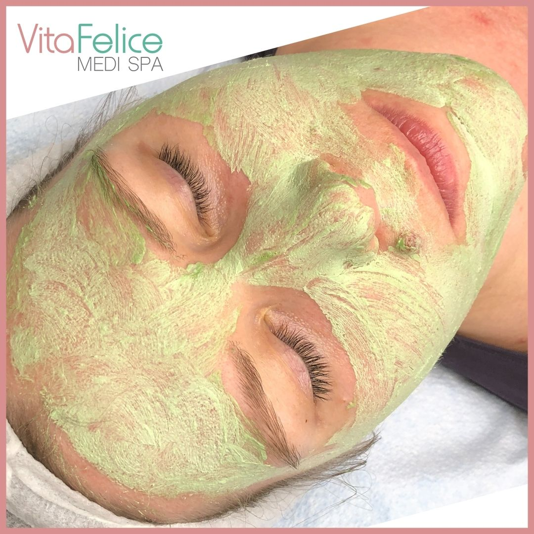 enzyme mask peel New Westminster