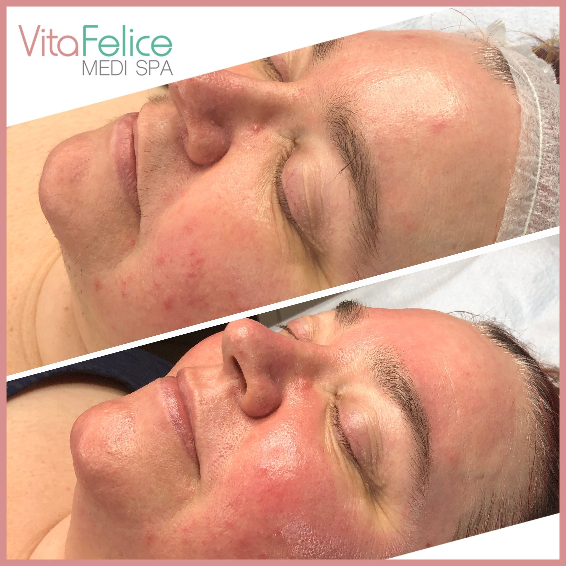 Sugaring facial New Westminster