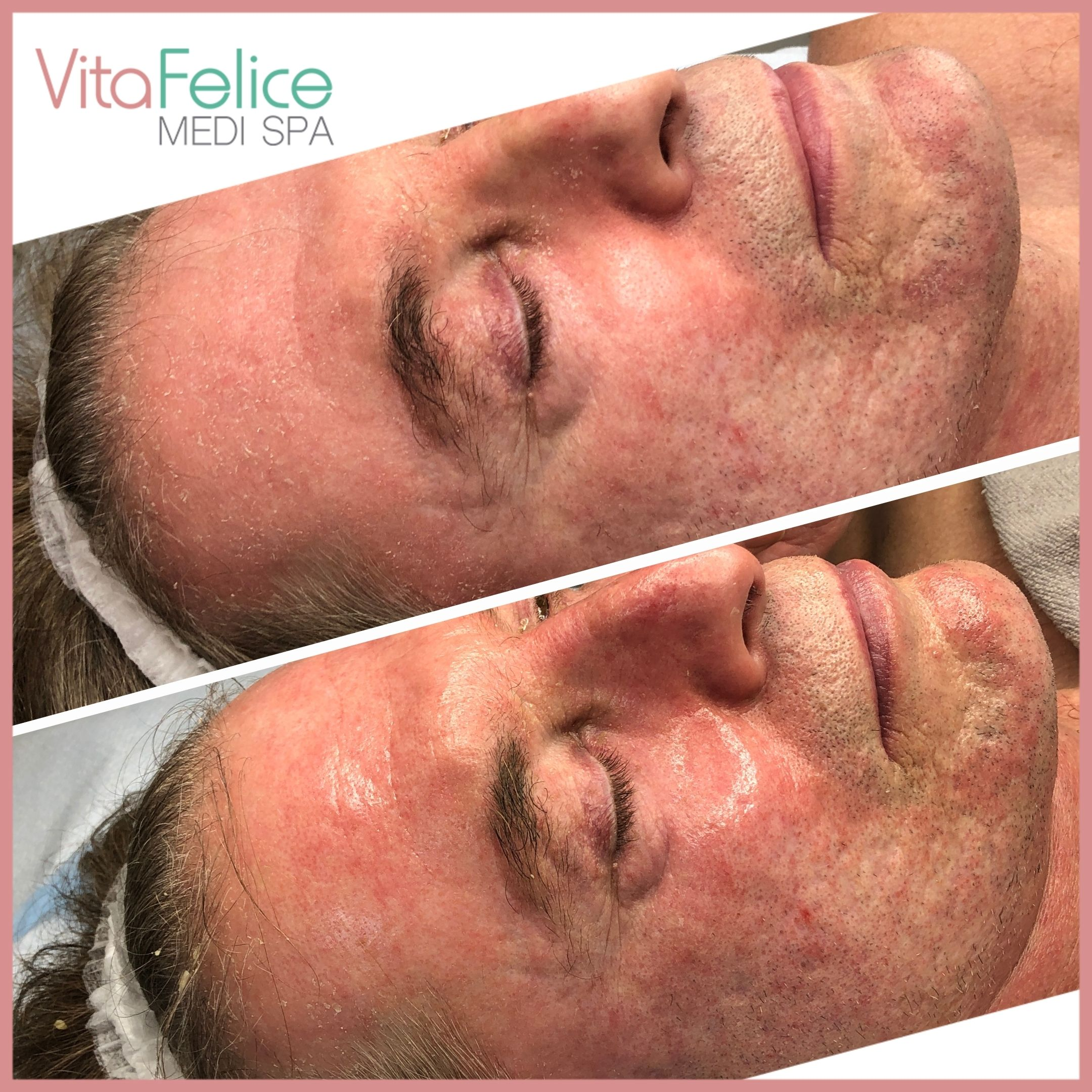Protein Face Lift Before After New Westminster