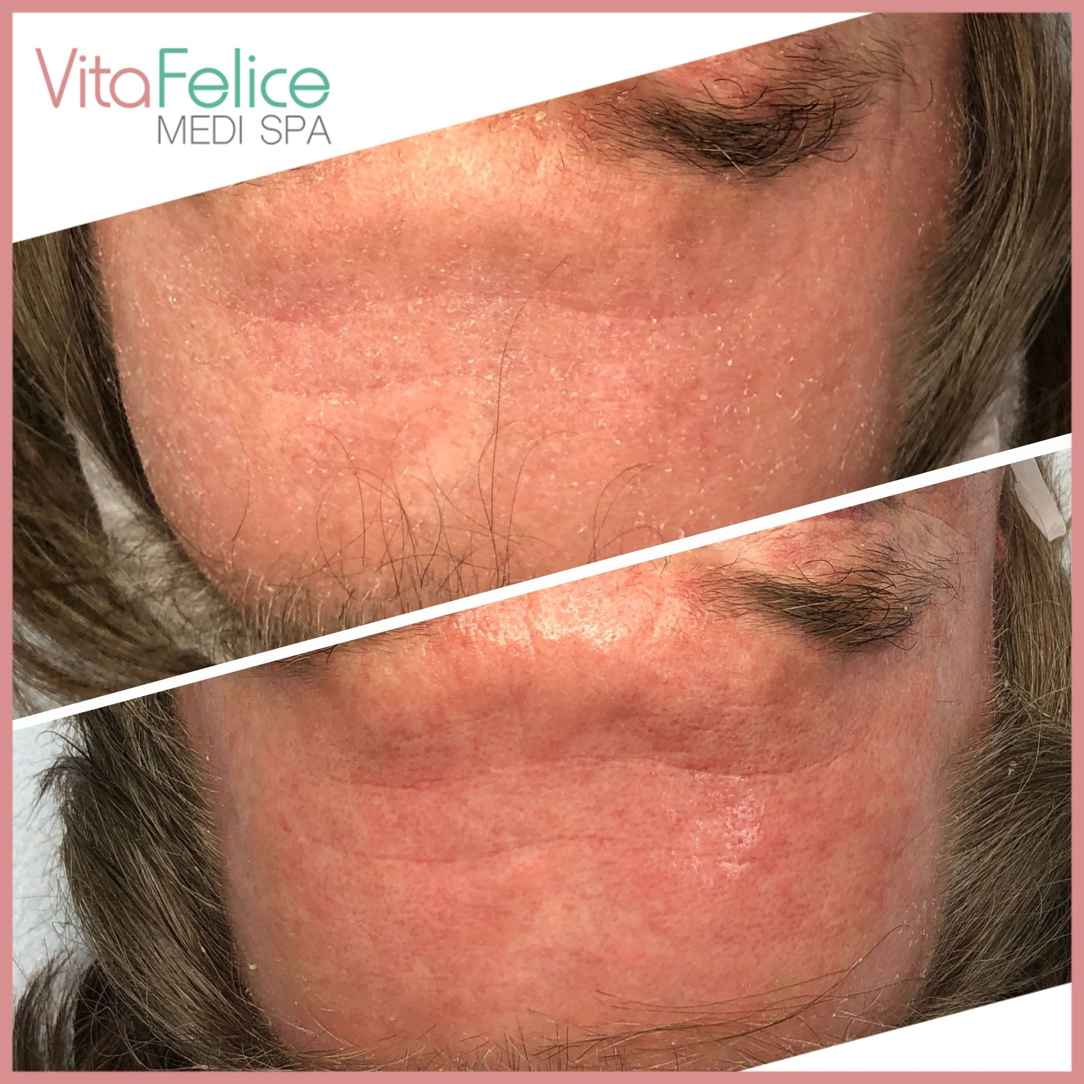 Protein Face Lift New Westminster