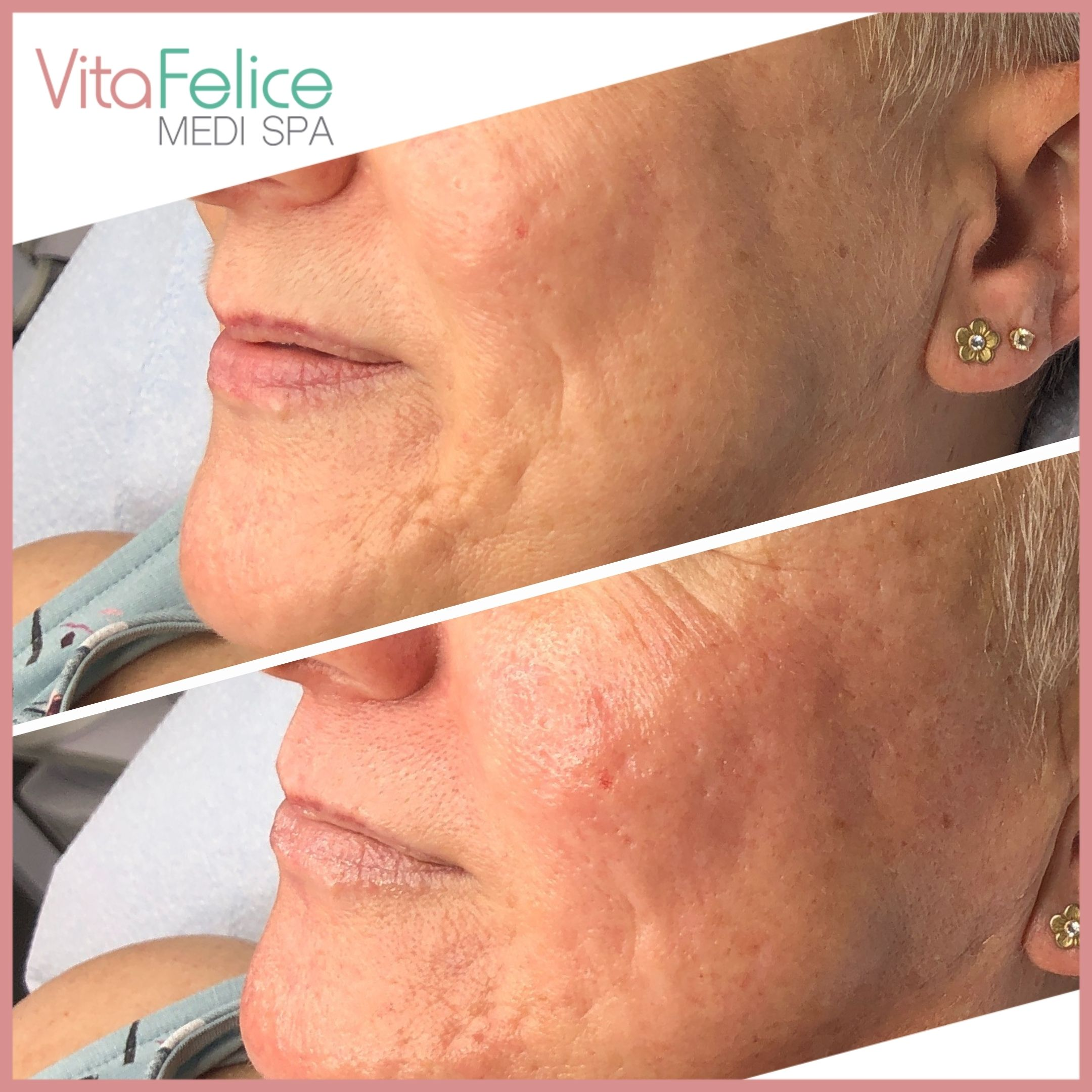 Sugaring Facial before after New Westminster